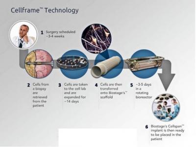 神奇,用ZYNQ控制人体器官培植环境
