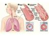哮喘不再可怕,新型石墨烯传感器可以提前预警