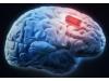 老年痴呆和健忘症将不再可怕,AI芯片帮你记住一切