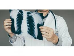 三句口诀!看广东省人民医院如何用CT鉴别、诊断新冠肺炎