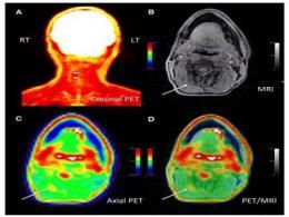 医学摄影技术新突破:可精确确定慢性疼痛位置,超大效果得到缓解
