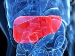 肝癌潜在治疗靶标新思路:肝癌与SPATS2蛋白的关联性