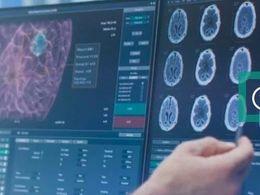 """为了医疗AI,他们做出了一个""""违背祖师爷""""的决定"""