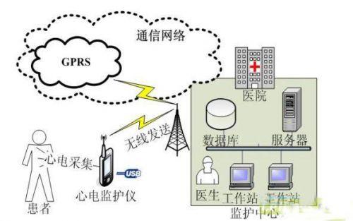 便携式心电监护系统的设计与解决方案