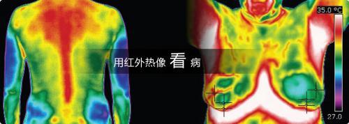 红外热像仪在医疗行业中的应用